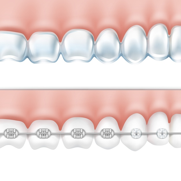 vector-human-teeth-with-metal-braces-whitening-tray-side-view-isolated-white-background_1284-45545.jpg